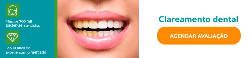 Clareamento Dental Antes e Depois, dentes amarelos x dentes brancos